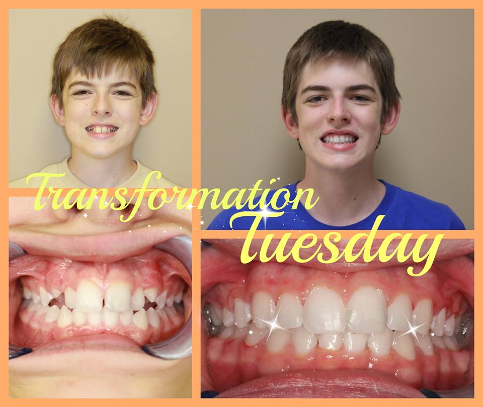 Before and After Braces in Madison, TN