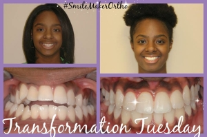 Before and After Braces in Nashville, TN