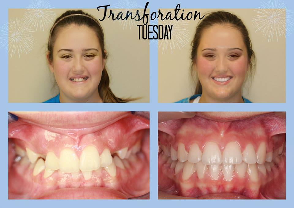 Before and After Braces in Hendersonville, TN
