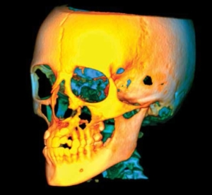 3D X-ray skull cbct orthodontic