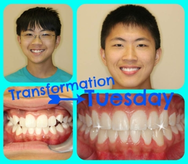 Braces Gallatin TN orthodontist results